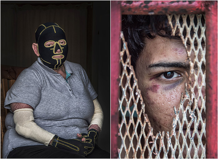 "Winning Images - Queensland Multi Media Awards 2016 - 'Best Editorial Image' - ""Ravenshoe Blast Survivor"" - 'Best Photographic Image' - ""Beaten Asylum Seeker"" by Brian Cassey"